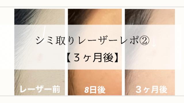 湘南美容外科 シミ取り 経過 ブログ